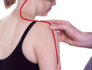 FDM – Fasziale Osteopathie nach Typaldos